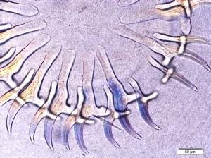 Pictomicrograph of Taenia hydatigena