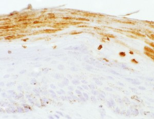Brown-staining areas show the presence of virus
