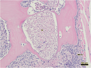 Figure 2: Higher magnification view of Figure 1. Pockets of myxosporean trophozoites (Myxobolus cerebralis) within bone (astericks) and foci of granulomatous inflammation (arrows).