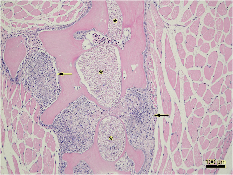 Figure 1: Pockets of myxosporean trophozoites (Myxobolus cerebralis) within bone (astericks) and foci of granulomatous inflammation (arrows).